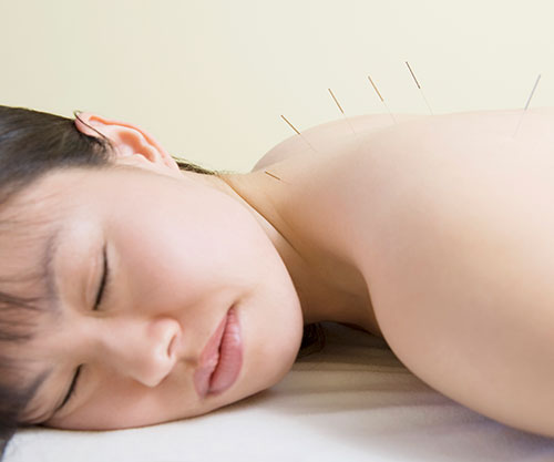 Acupuncture-Acupressure-Hernando-County